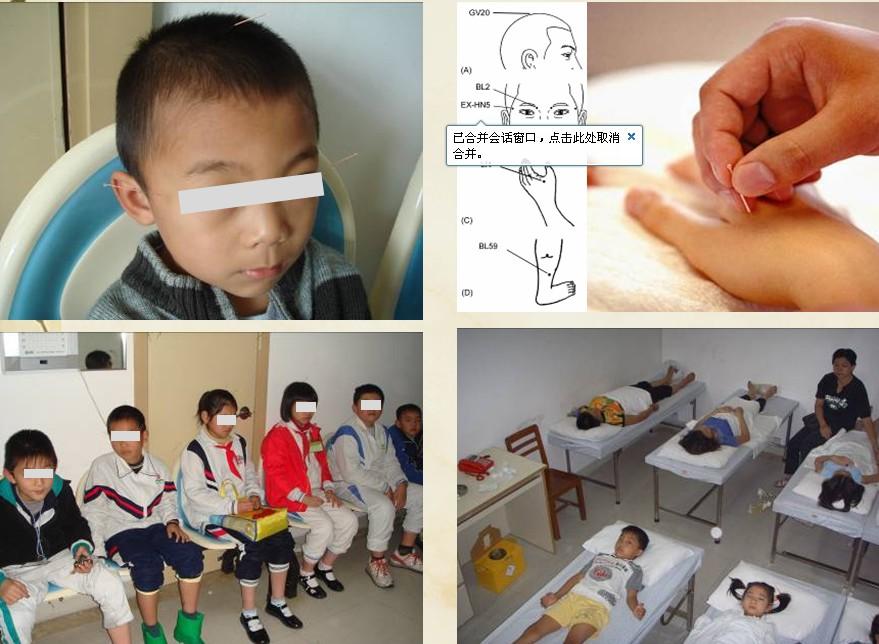 针灸治疗弱视
