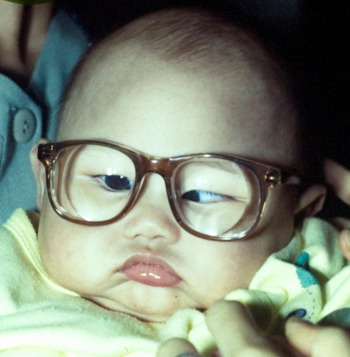 儿童白内障手术成功的关键