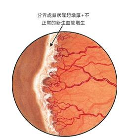 早产儿视网膜病