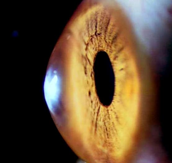 锥形角膜的手术治疗新进展
