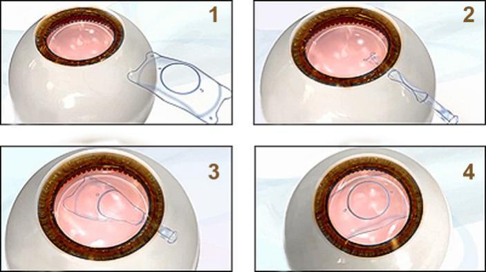 ICL 手术过程