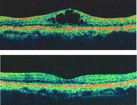 中心性视网膜静脉阻塞