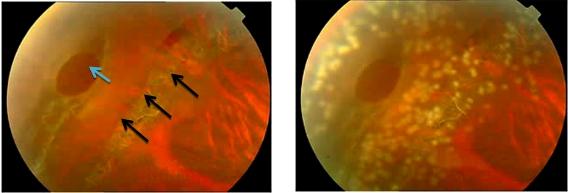 激光治疗视网膜裂孔