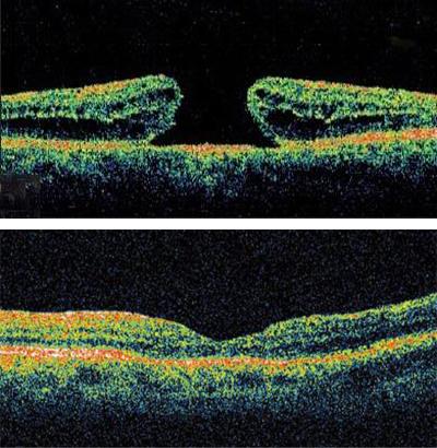 黄斑裂孔(上图)接受玻璃体切除手术治疗后,裂孔愈合