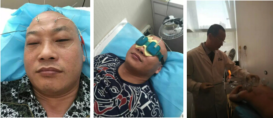 张先生正在进行针灸、冷敷中药离子导入及行刺络放血治疗