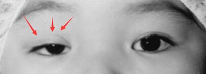 儿童眼睑下垂