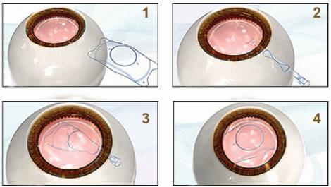 ICL晶体植入可以治疗高度近视吗
