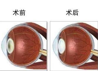 在深圳近视眼如何治疗