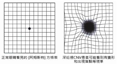 深近视引起的黄斑病变