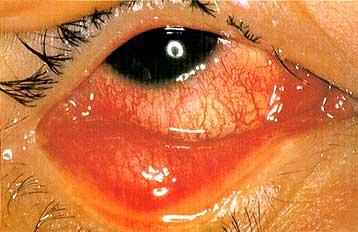 结膜炎有哪些症状呢