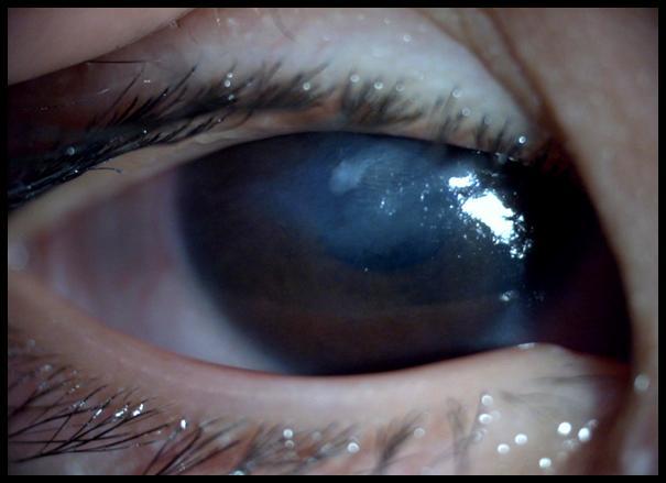 常见的干眼症预防方法有哪些