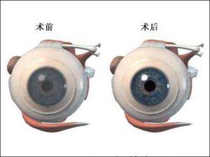 角膜移植手术后需要注意什么