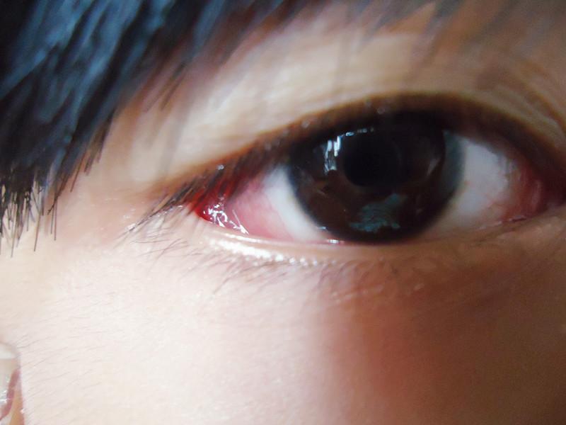 得了病毒性角膜炎怎么治疗