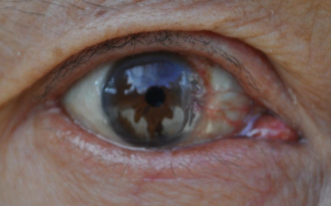 翼状胬肉是什么眼科疾病