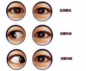 斜视的症状表现有哪些