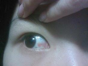 眼底出血怎么办