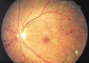 视网膜色素变性有哪些临床表现