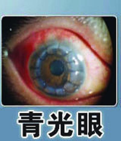 青光眼的治疗方法