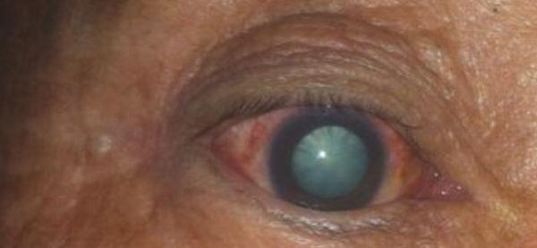 青光眼可致盲你知道吗