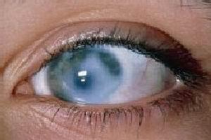 哪些原因会引发青光眼