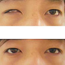 国内安装义眼的眼科医院是哪家好