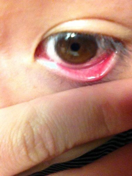 眼睑炎有哪些症状表现