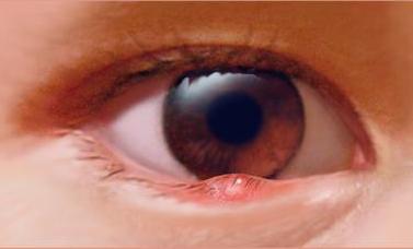 眼睑炎有些什么症状