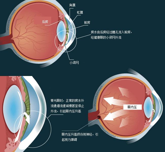 青光眼治疗费用如何确定?