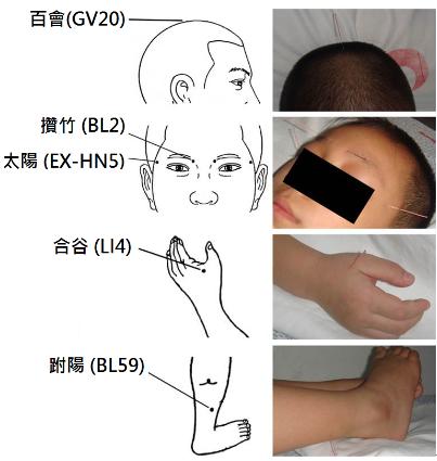 深圳希玛林顺潮眼科医院中医针灸
