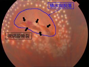 视网膜脱落的治疗