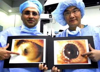 魏医生和林医生指,全层角膜移植手术安全有效,能帮助病人重见光明