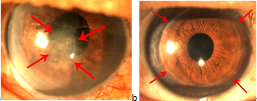 全层角膜移植手术安全有效,能帮助病人重见光明