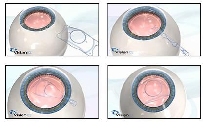 高度近视矫正的较好方案——ICL晶体植入