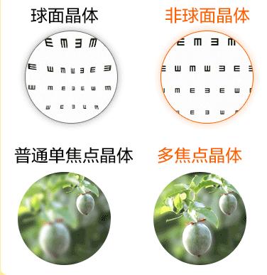 深圳治疗白内障的眼科医院