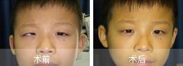 治疗斜视的好方法