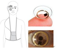 青光眼的眼压检测器
