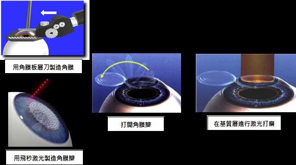 飞秒激光的术前检查步骤