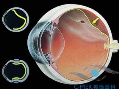视网膜脱落要分类治疗