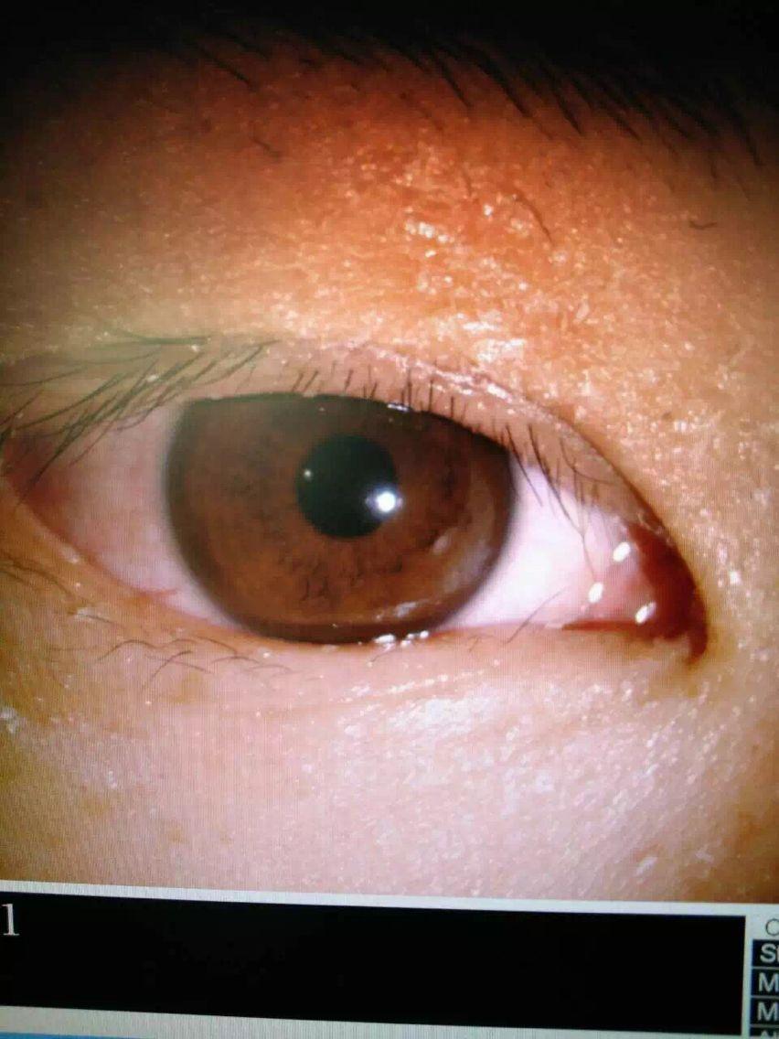 【深圳都市报】错把502当眼药水 粗心女眼睛险失明