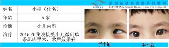 小孩斜视手术治疗