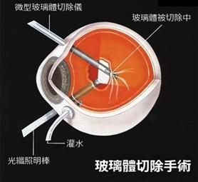 视网膜脱落手术多少钱