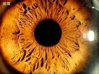 眼睛瞳孔变心形的原因