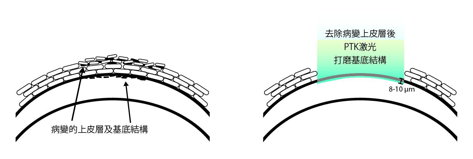 角膜擦伤的症状有哪些?