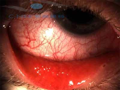 如何区分干眼症和慢性结膜炎?