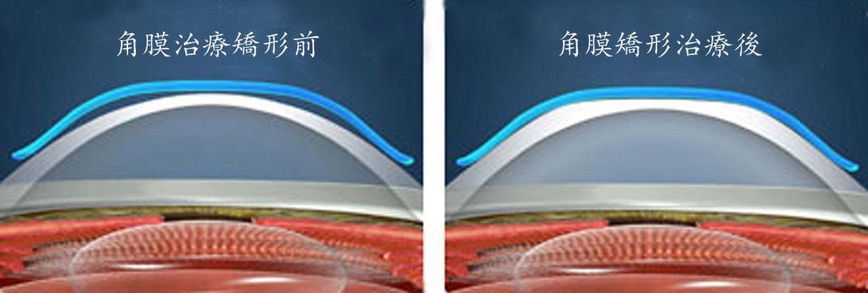 角膜塑形镜究竟靠不靠谱