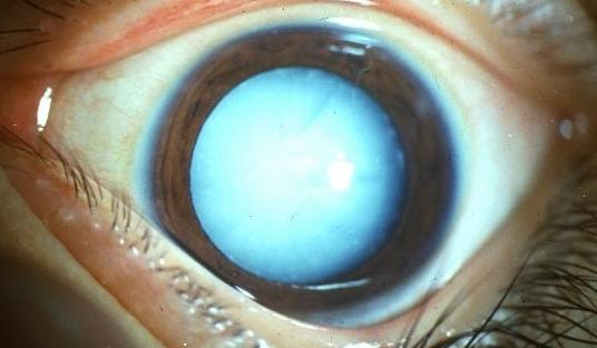 眼睛得白内障有什么症状?