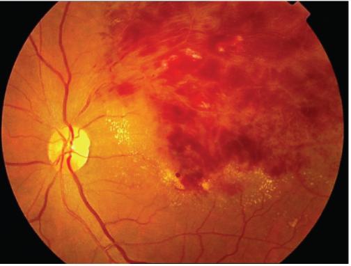眼底出血有哪些症状表现