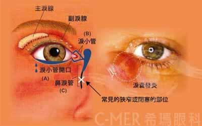 泪腺堵塞手术的治疗