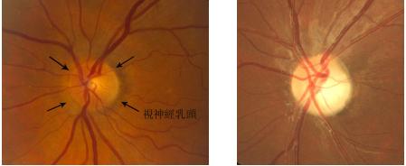 视神经萎缩的危害症状有哪些
