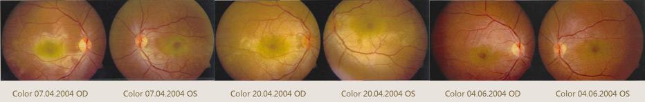 中医针药结合可治多种眼病